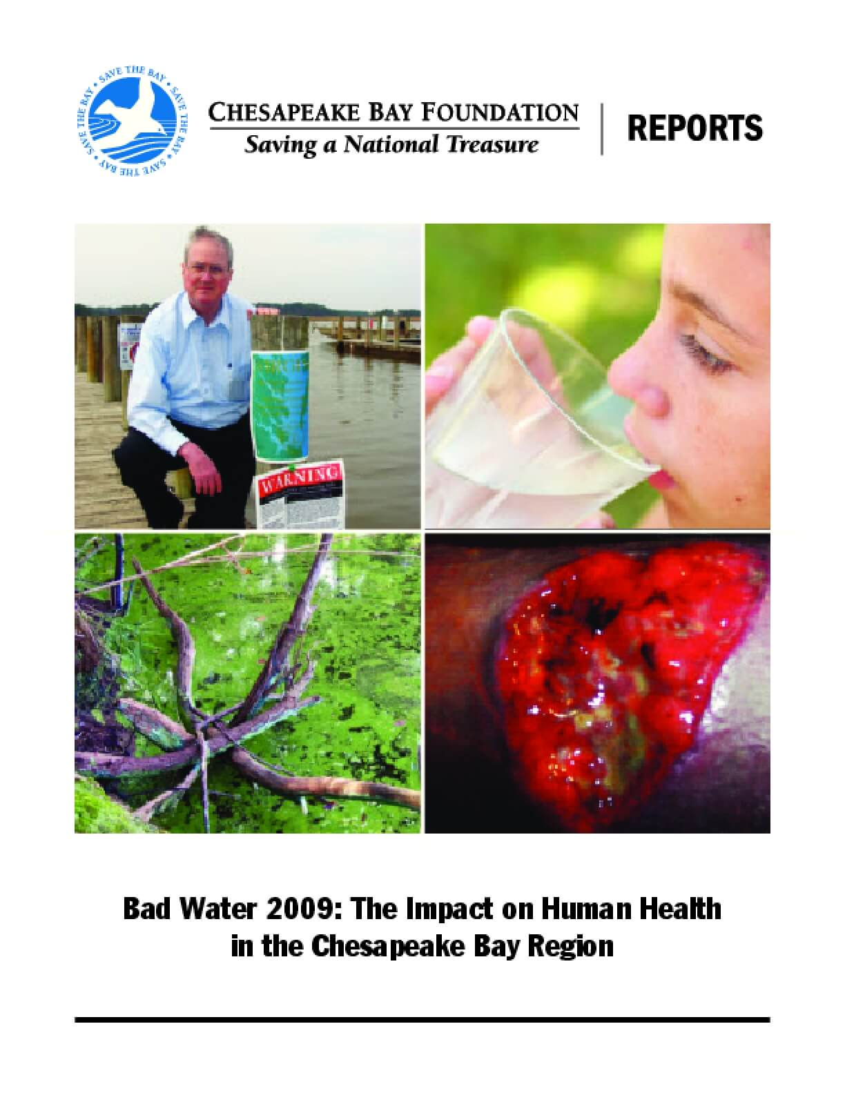 Bad Water 2009: The Impact on Human Health in the Chesapeake Bay Region
